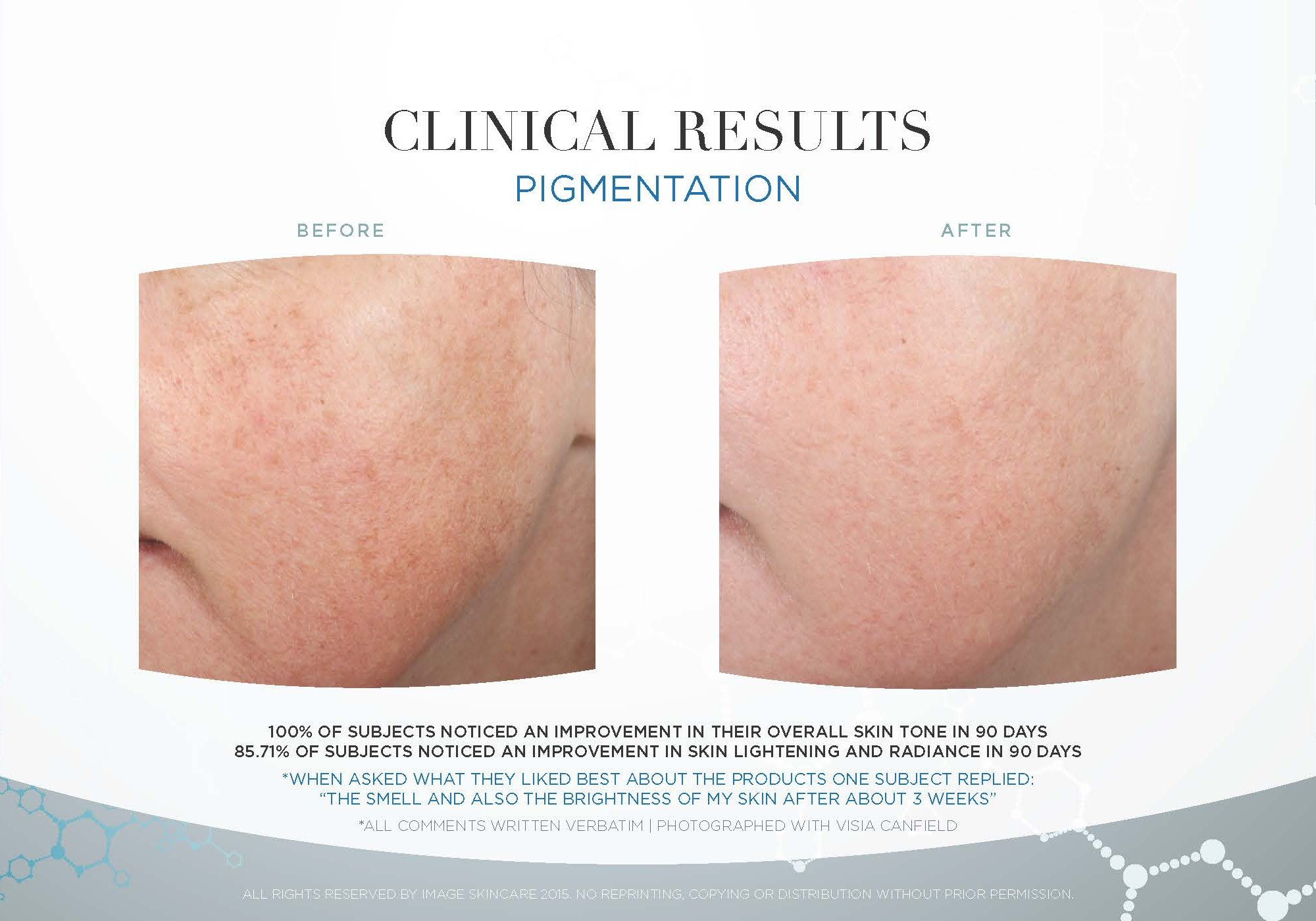 Pigmentation-Clinical-Study-Photos