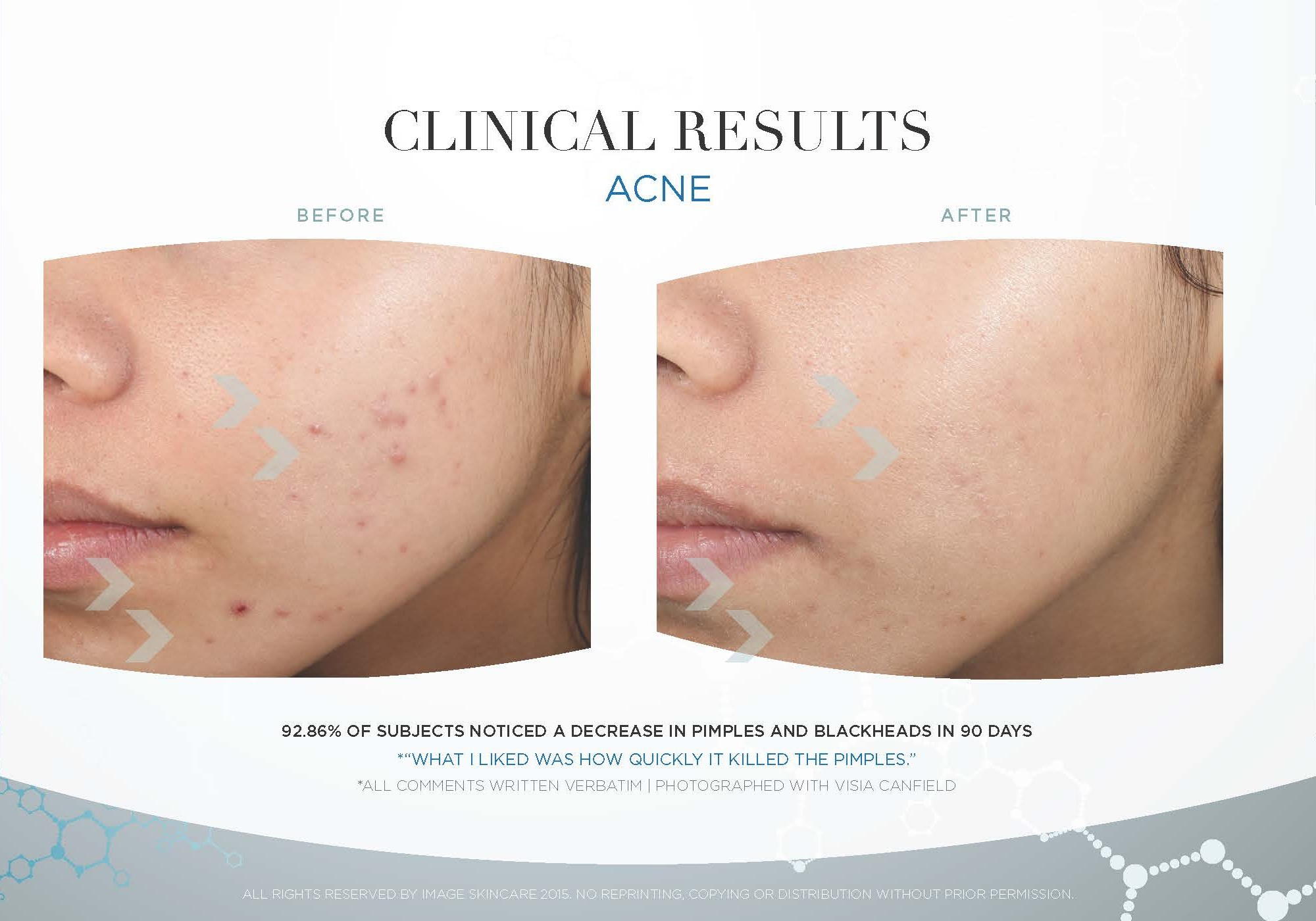 Acne-Clinical-Results