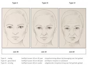 Natural face lifting